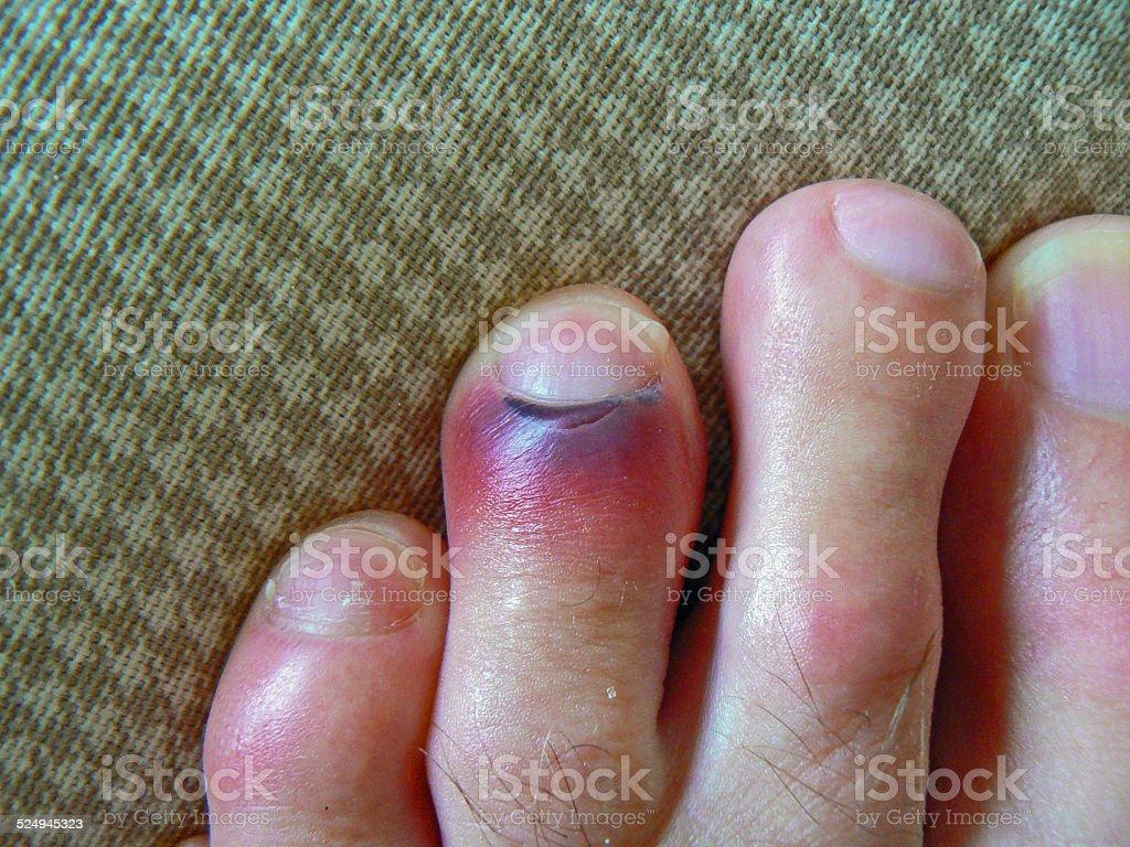 Bruised toe stock photo
