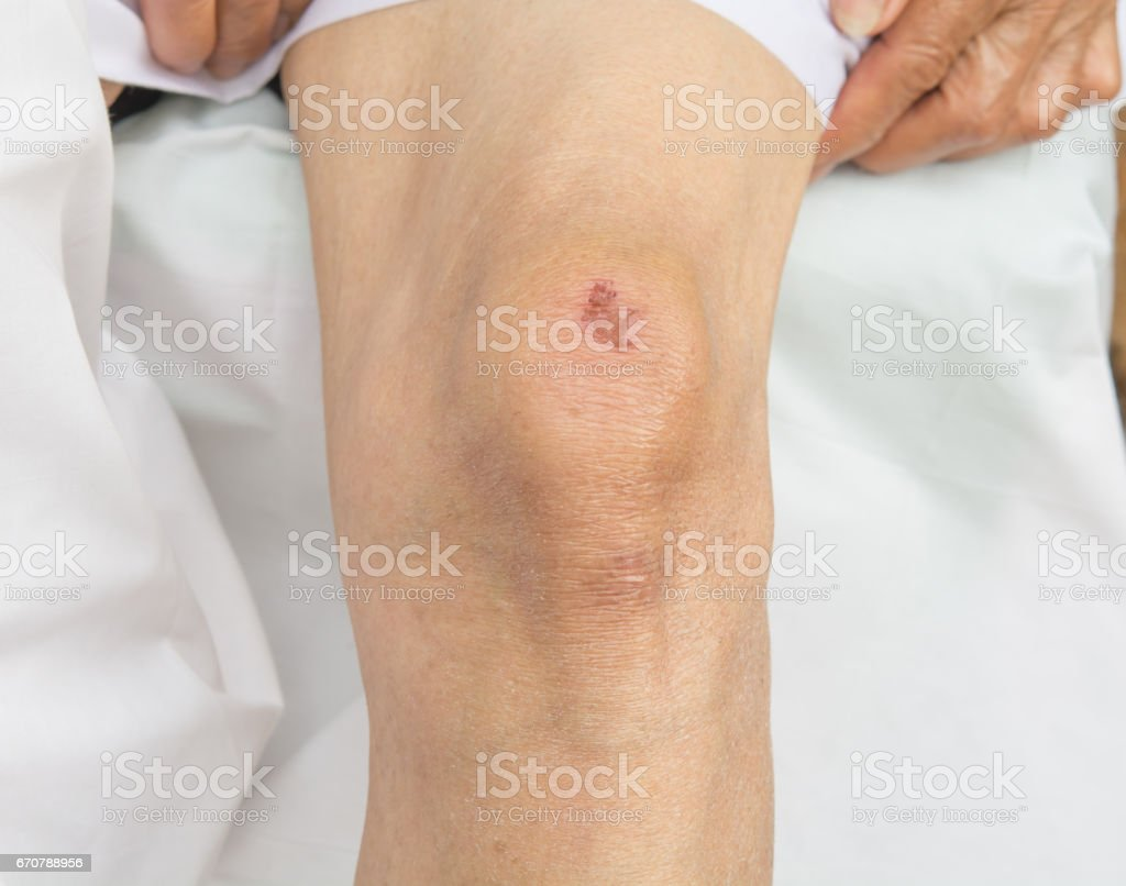 Bruises on the knees stock photo