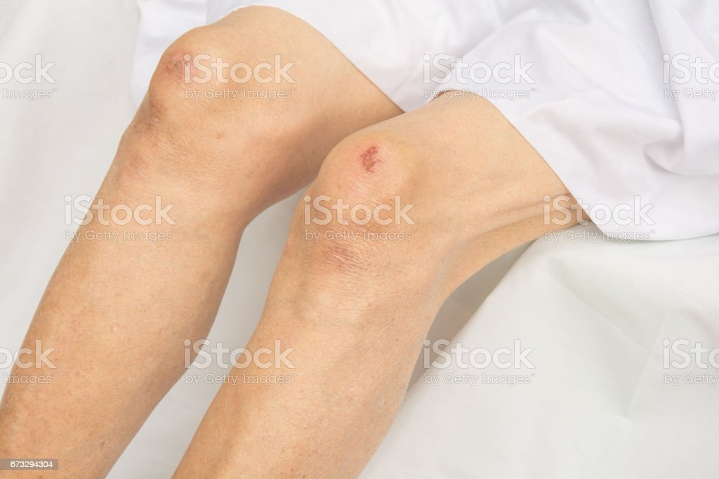 Bruises on the knees royalty-free stock photo