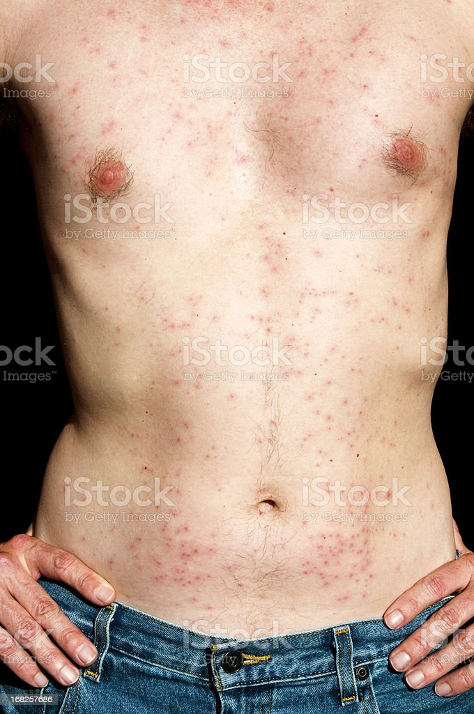 Bumps on skin from Hot Tub folliculitis stock photo