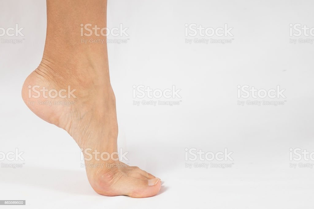bunion in foot problem stock photo
