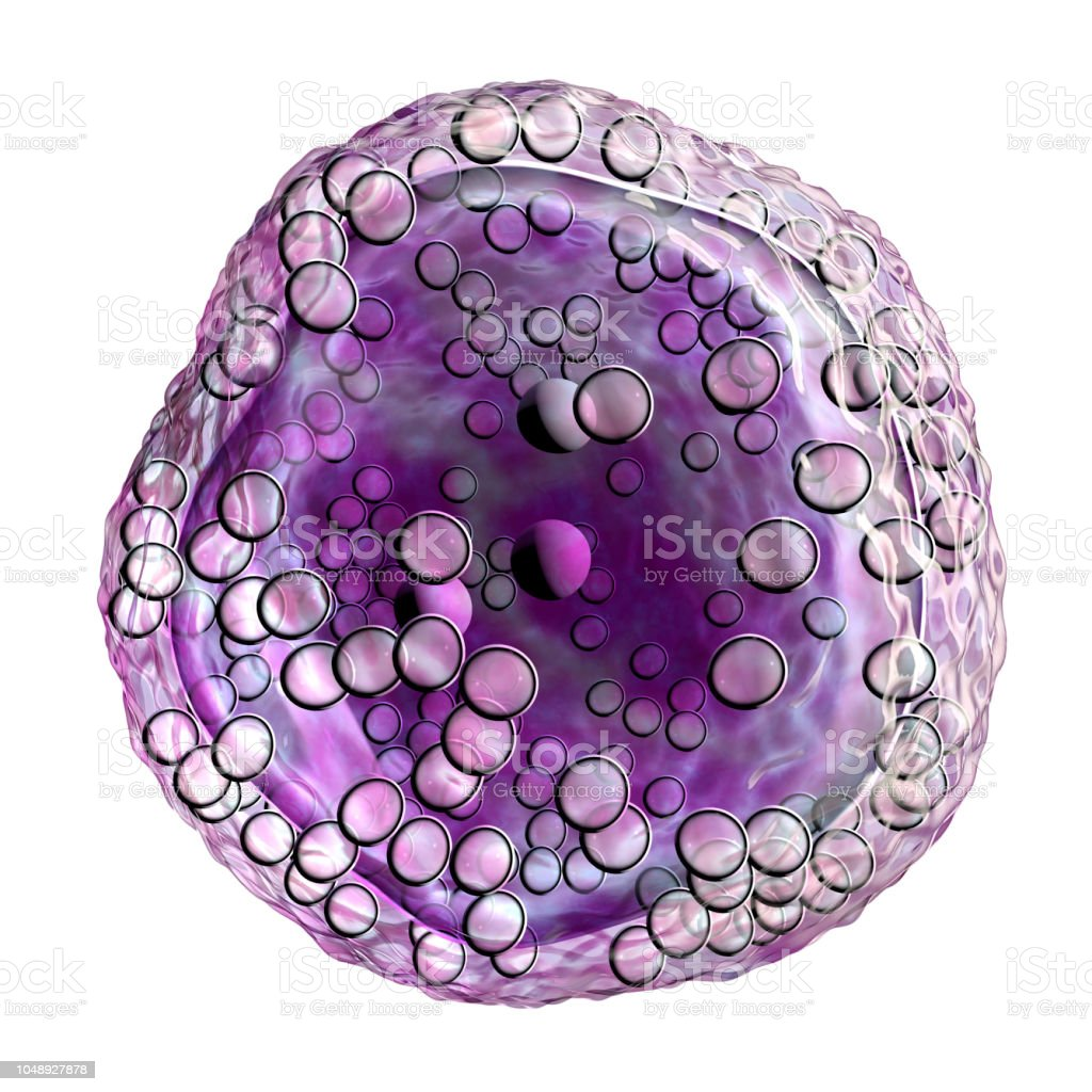 Burkitt's lymphoma cell, is a cancer of the lymphatic system stock photo