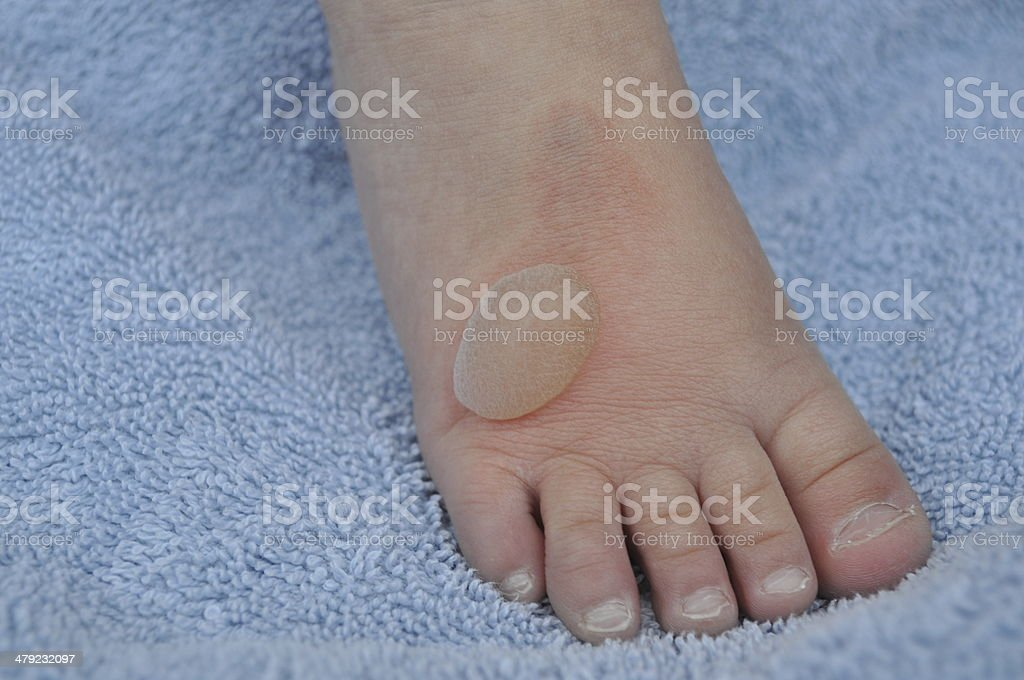 Burn blister A burn blister on top of a young child's foot Blister Stock Photo