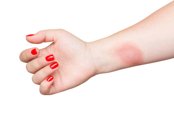 Burn on female hand with red nails isolated on white background. Burn on female hand with red nails isolated on white background burning stock pictures, royalty-free photos & images