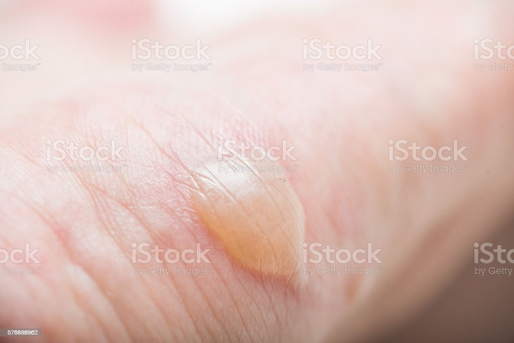 burn water blisters stock photo