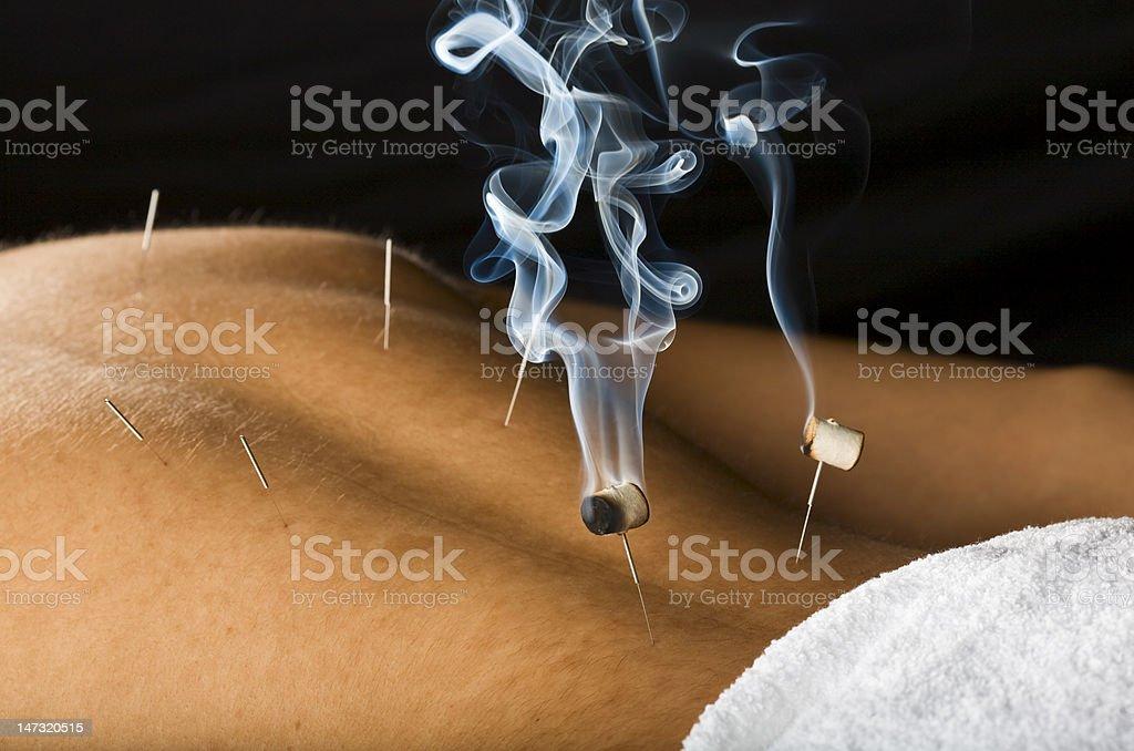 Burning moxa herb on needles stuck to skin stock photo