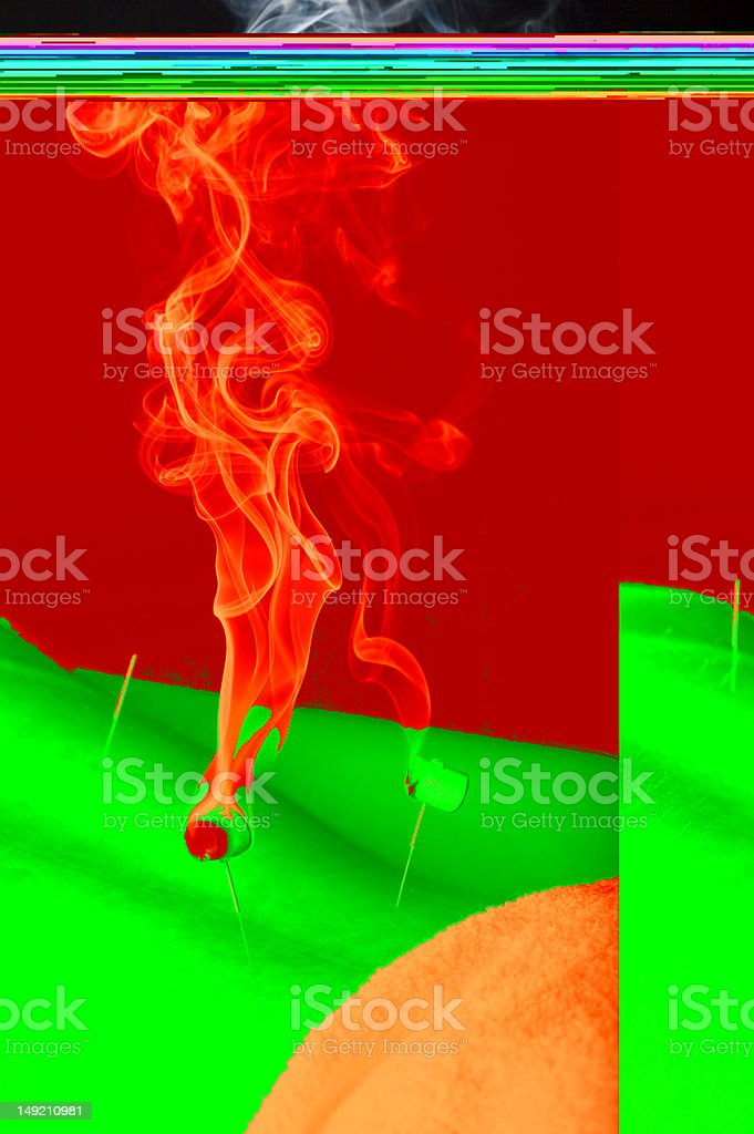 Burning moxa on male patient royalty-free stock photo