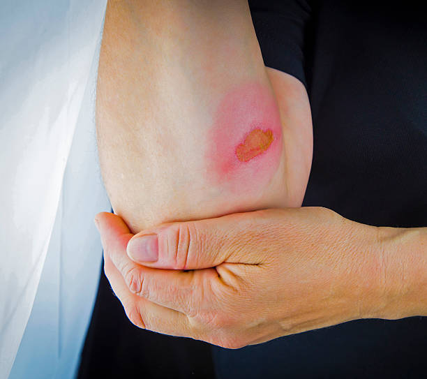 burns on forearm skin - burning stock pictures, royalty-free photos & images