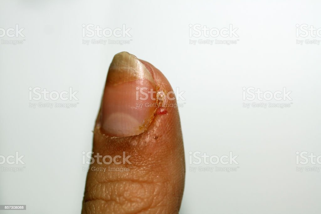 Burrs on the finger. Inflammation and abscess. stock photo