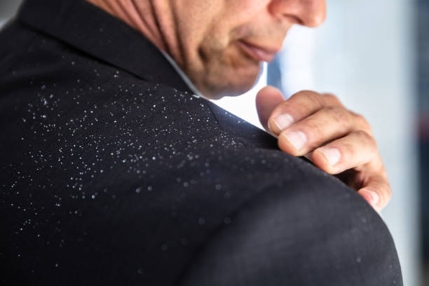 Businessman Brushing Off Fallen Dandruff On Shoulder Close-up Of A Businessman's Hand Brushing Off Fallen Dandruff On Shoulder dandruff stock pictures, royalty-free photos & images