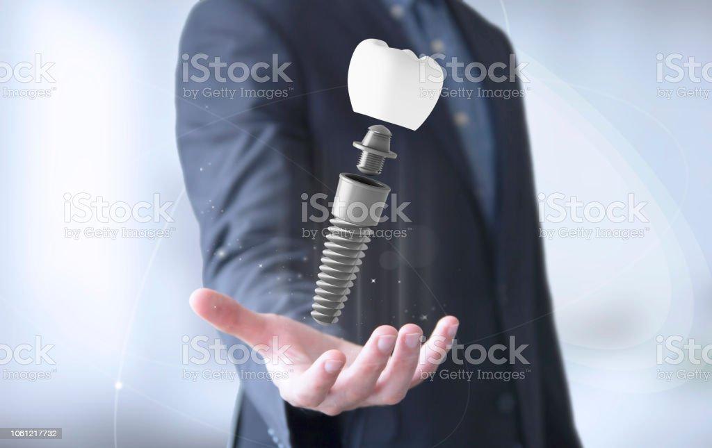 Geschäftsmann Hand mit Zahnimplantaten – Foto