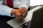 istock Businessman pain in hands while woking with laptop. 1209221397