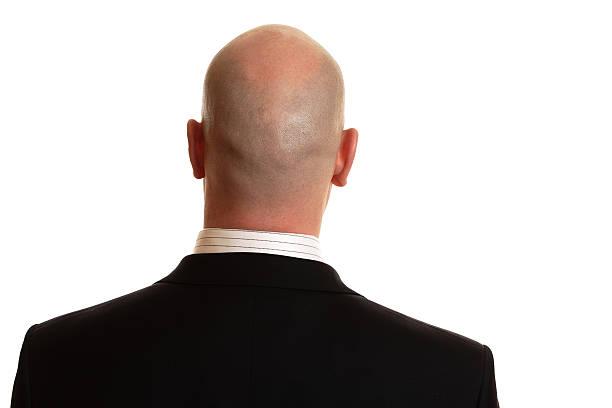 Glatze outfit mit für männer Was denkt