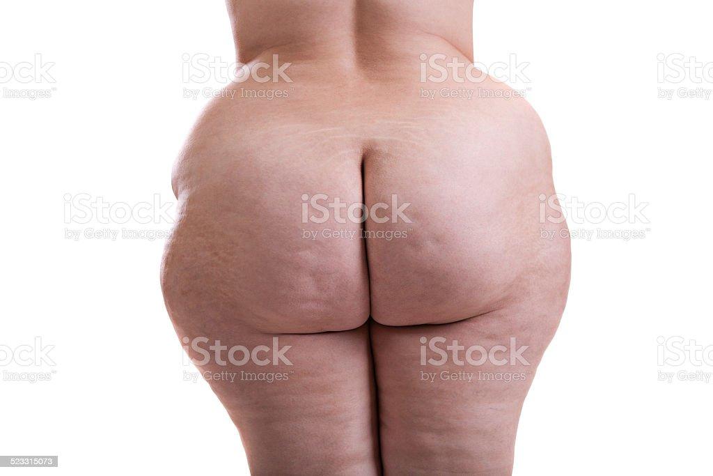 Fotografía de Nalga De Chica Con Obesidad y más banco de imágenes de ...