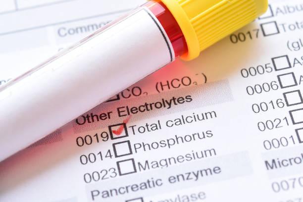 鈣測試 - 鈣 個照片及圖片檔