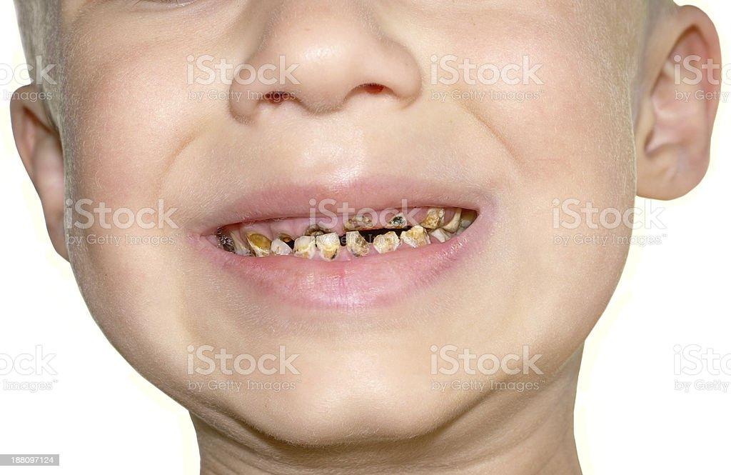 Calf's Teeth decay Toothache Dental Medicine stock photo