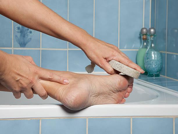 callous piedi e pietra pomice - callo foto e immagini stock