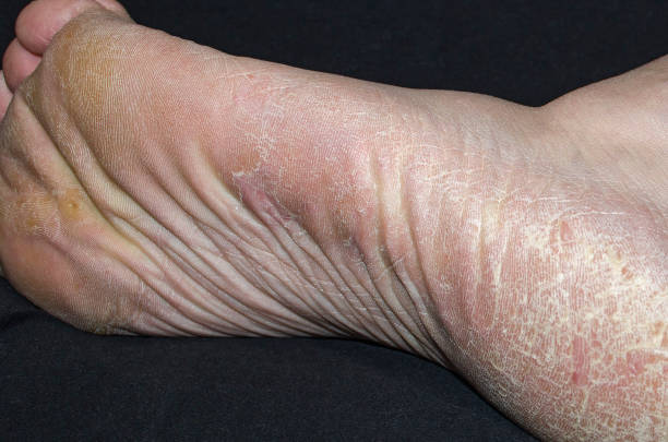 callus et hyperkératose sur pieds, gros plan, peau séchée - verrue pied photos et images de collection