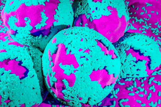 de cel van dagboekkanker in ovarian cyste oncologie concept muteert cellen vorm shift kanker zaadknop - eierstok stockfoto's en -beelden