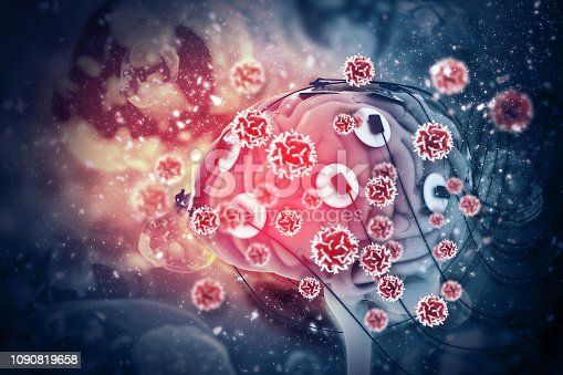 istock Cancer cells attacking the human brain 3d illustration 1090819658