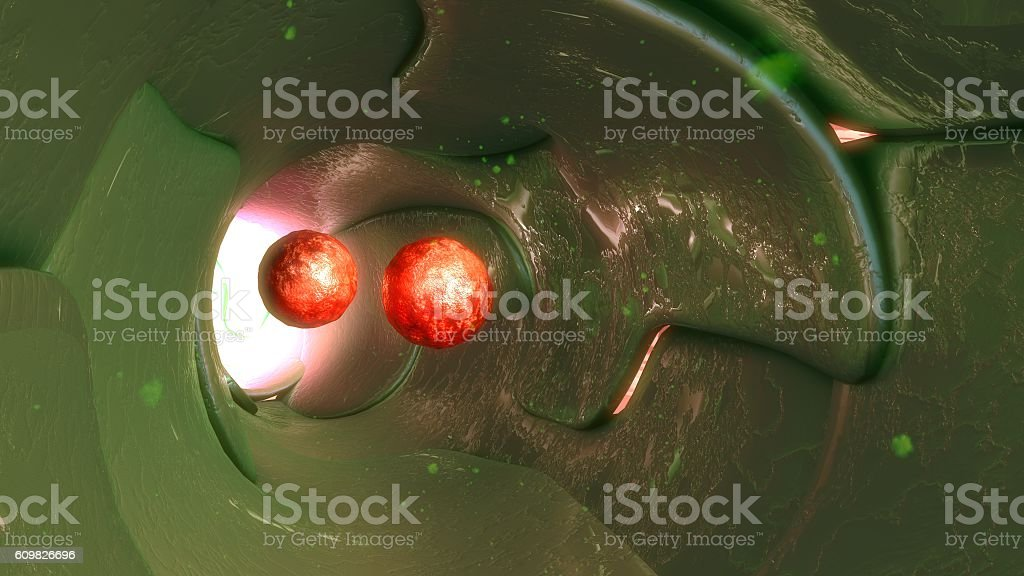 cancer cells in lymph vessels stock photo