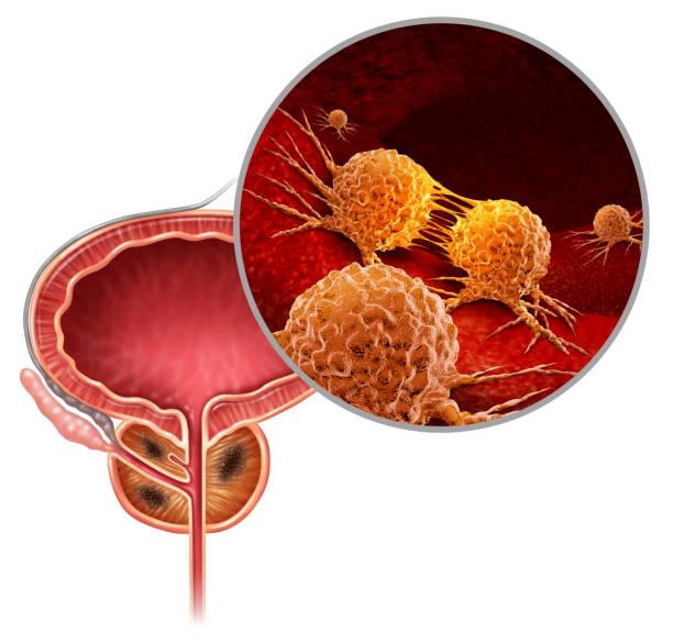prostaatkanker - prostaatkanker stockfoto's en -beelden