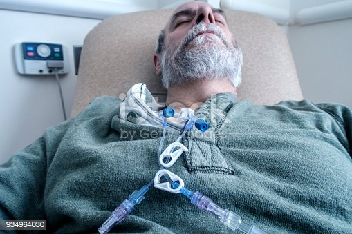 Senior adult man outpatient cancer patient resting comfortably and sleeping while chemotherapy IV drip medicine is administered by a tangled array of medical equipment through an intravenous chemo access port temporarily embedded into his upper chest. The plastic tubes, clamps, connectors, caps and off-camera drip bags are attached only during each two to three hour on-site session at the medical hospital clinic. The embedded access port stays in place throughout his three month bi-weekly chemotherapy regimen.