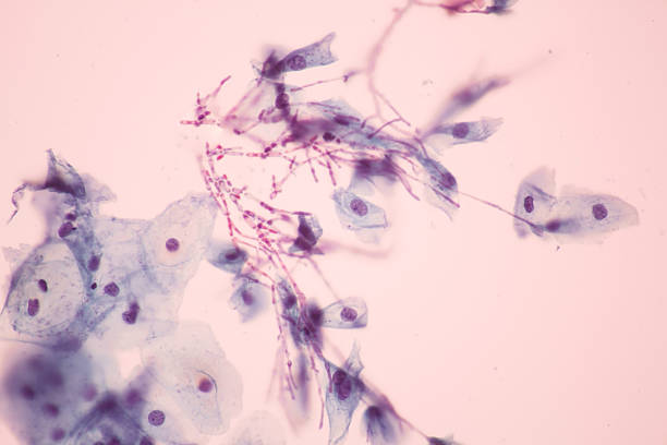 Candida view in microscopic. stock photo