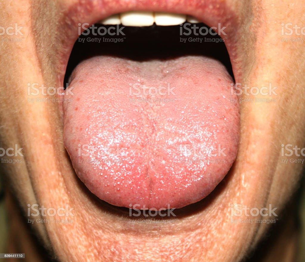 candidiasis bucal y garganta