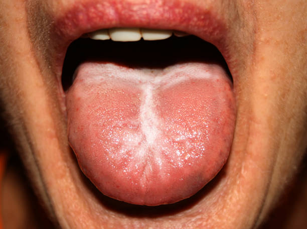 Candidiasis in the tongue. White coating. Thrush. Candidiasis in the tongue. White coating. Thrush anemia stock pictures, royalty-free photos & images