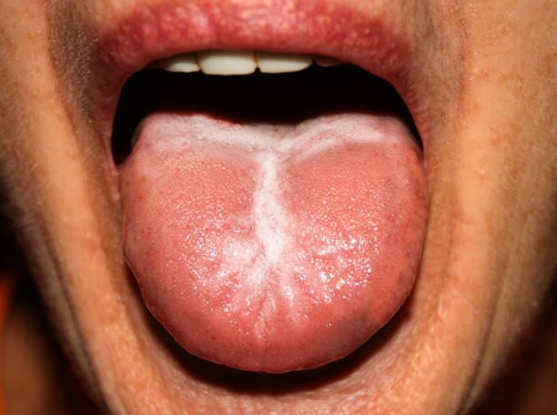 candidiasis in the tongue. white coating. thrush. - anemia foto e immagini stock