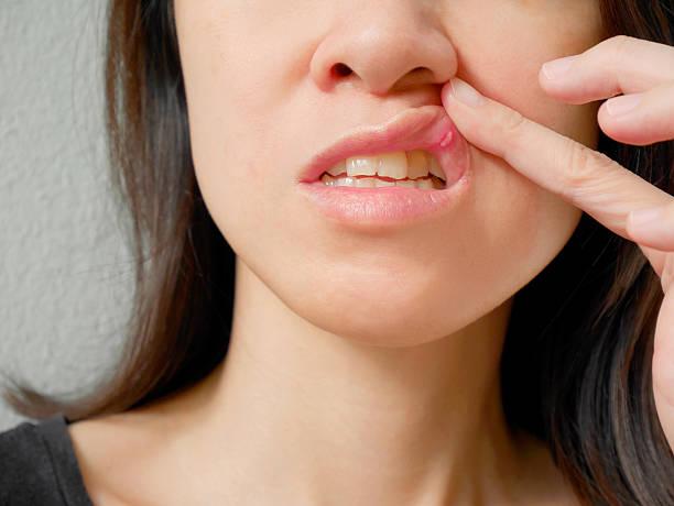 Canker sore on woman upper lip - foto stock