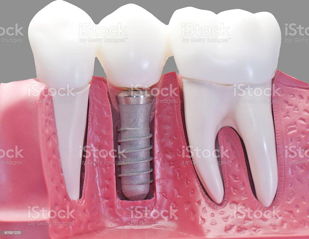 Capped dental Implant Model stock photo
