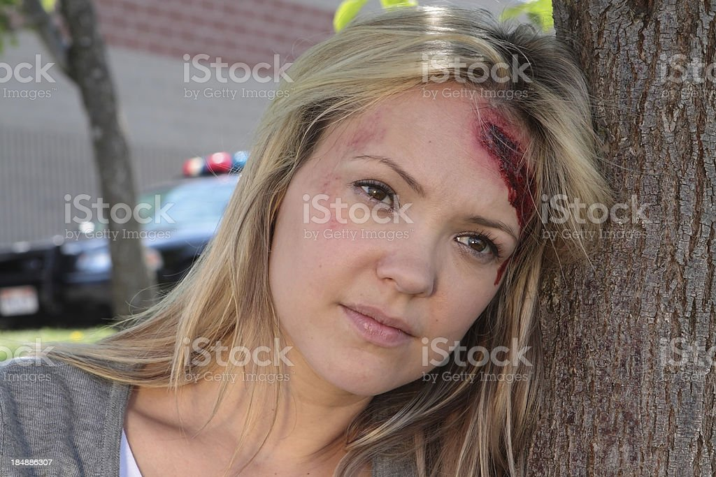 Blond woman with a head injury leans against a tree staring off into...