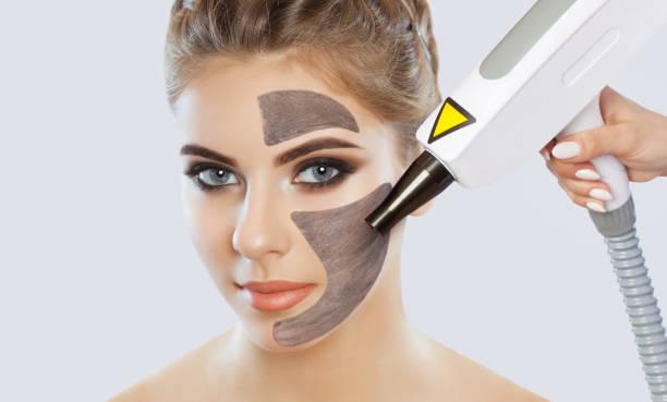 Carbon face Peeling procedure in a beauty salon. Hardware-Kosmetologie-Behandlung. – Foto