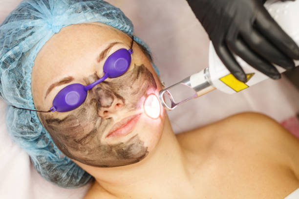 Carbon peeling. Laser pulses. Carbon face peeling. Laser pulses clean the skin of the face. Hardware cosmetology. The process of photothermolysis, warming the skin. Facial skin rejuvenation. carbon dioxide stock pictures, royalty-free photos & images