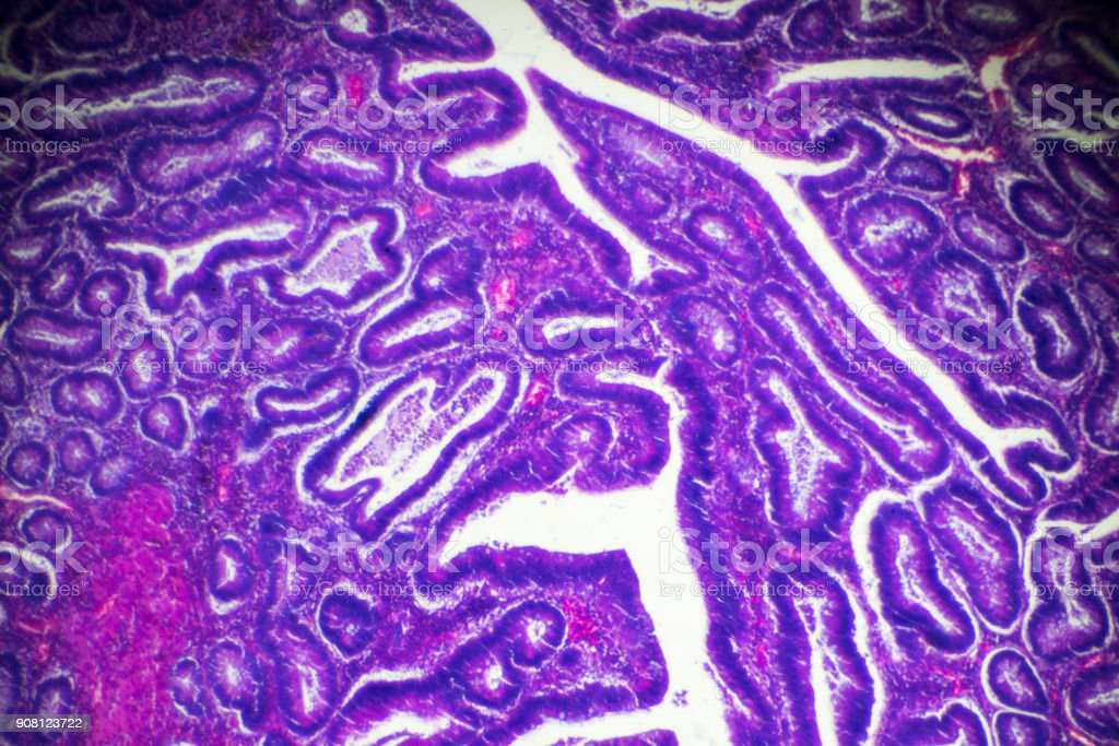 Carcinoma of the large intestine (well diff. tubular adenocarcinoma) under microscope stock photo