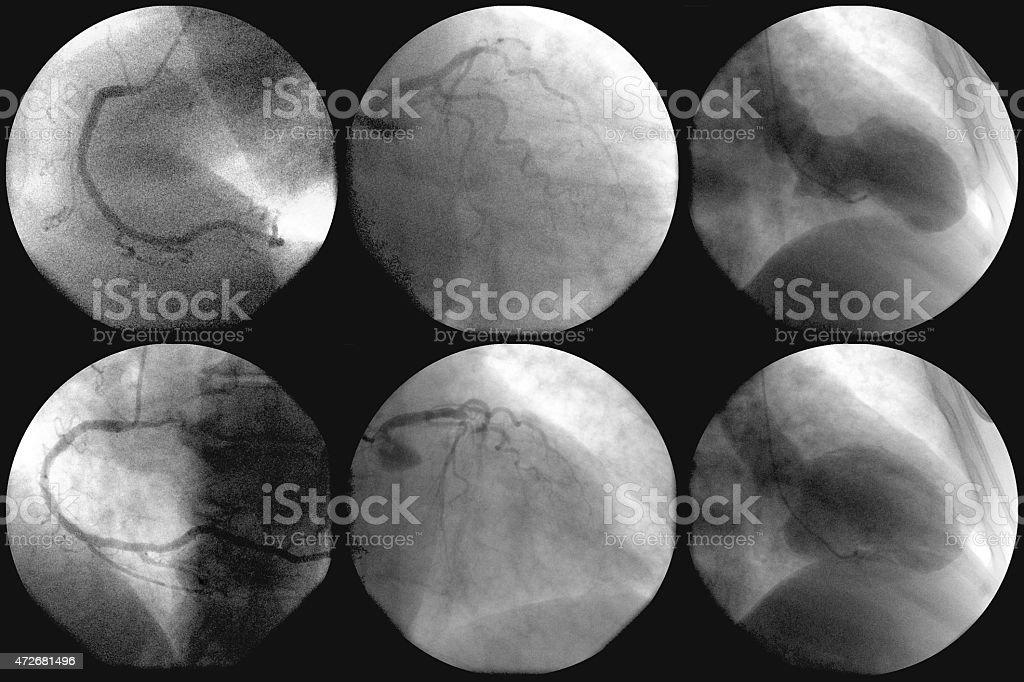 Cateterismo Cardíaco e angiography coronário - foto de acervo