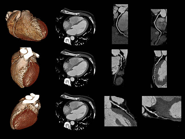 cardiac ct - medical scan stock photos and pictures