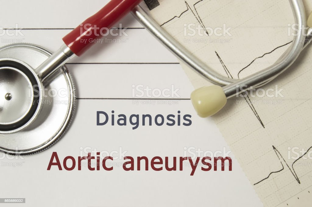 Cardiac diagnosis of Aortic aneurysm. On doctor workplace are red stethoscope, printed on paper ECG line and a pen close-up lying on medical handbook, which indicated diagnosis of Aortic aneurysm stock photo