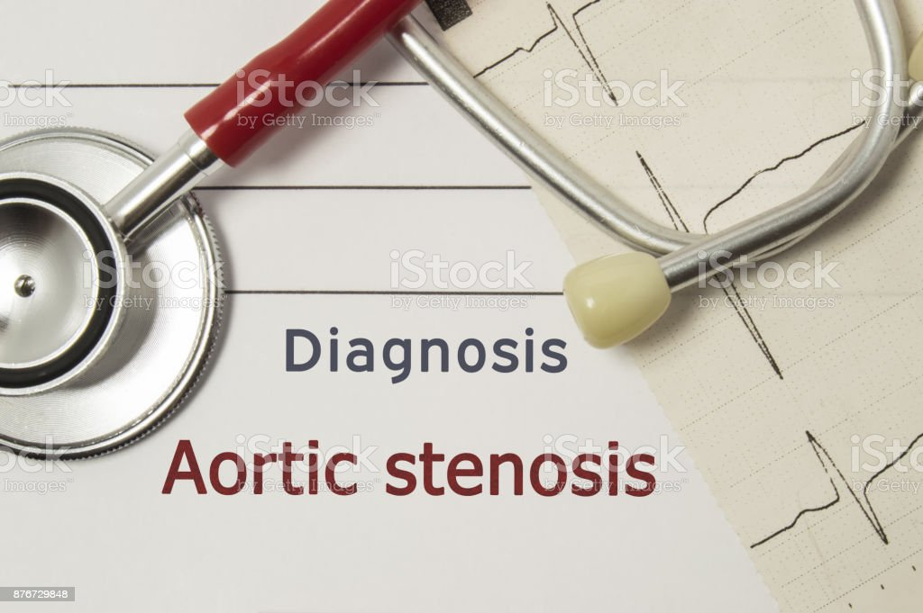 Cardiac diagnosis of Aortic Stenosis. On doctor workplace are red stethoscope, printed on paper ECG line and a pen close-up lying on medical handbook, which indicated diagnosis of Aortic Stenosis stock photo