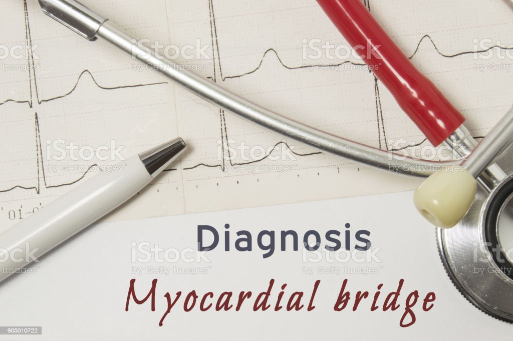 Cardiac diagnosis of Myocardial Bridge. On doctor workplace is paper medical documentation, which indicated diagnosis of Myocardial Bridge, surrounded by red stethoscope, ECG line and pen close up stock photo