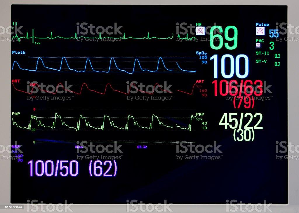 Monitor cardíaco com sinais vitais: EKG, Pulse Oximetry, pressão arterial - foto de acervo