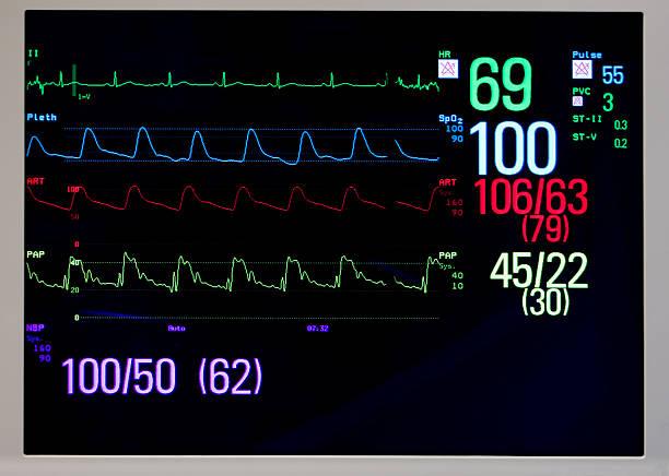 Cardiac monitor displays EKG, pulse, and blood pressure stock photo