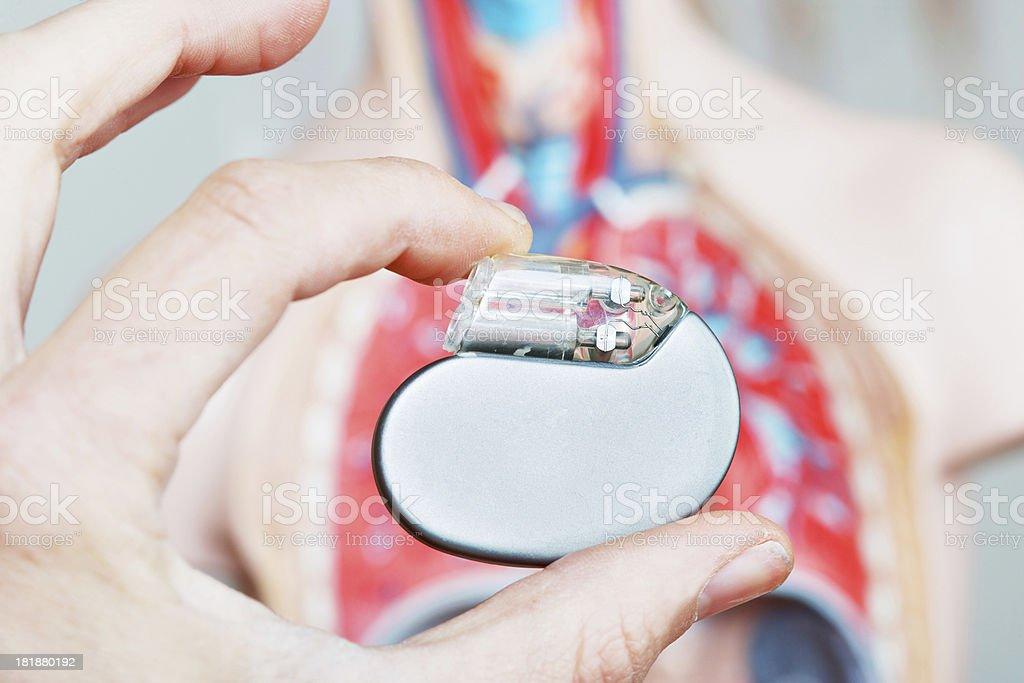 Marcapasso cardíaca - foto de acervo