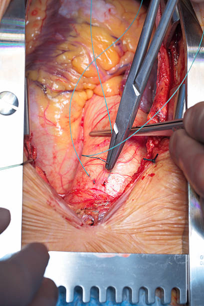 cardiac surgery. work on the aorta. documentary photography for professionals. - open wounds stock photos and pictures