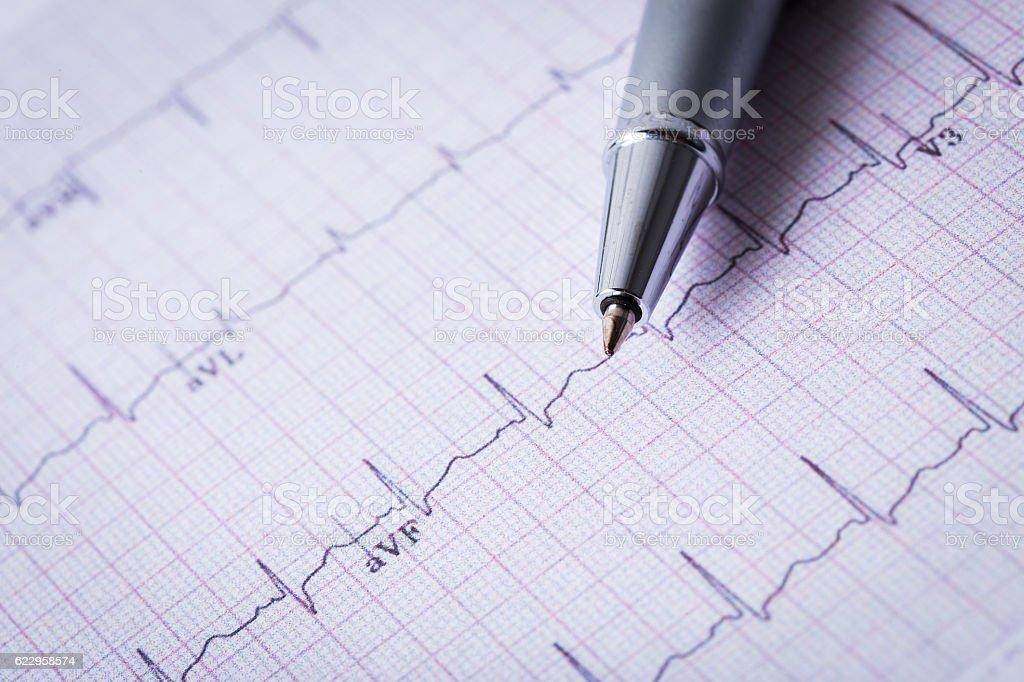 cardiogram and technical pen stock photo
