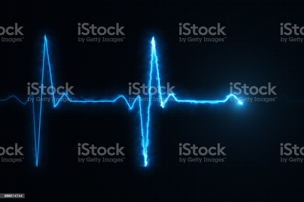 Cardiogram cardiograph oscilloscope screen blue illustration background stock photo