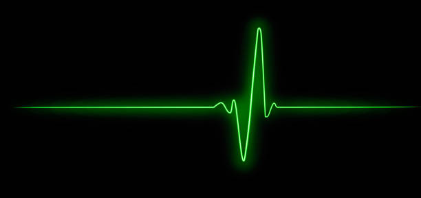 Cardiogram, hope for survival, resuscitation of human life, pulse. Ekg - Heart beat. Cardiogram, hope for survival, resuscitation of human life, pulse. Ekg - Heart beat. pulse trace stock pictures, royalty-free photos & images