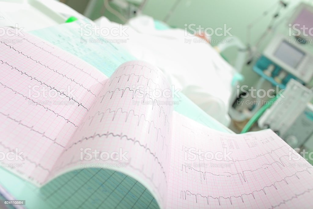 Cardiogram of a patient with acute cardiovascular failure stock photo
